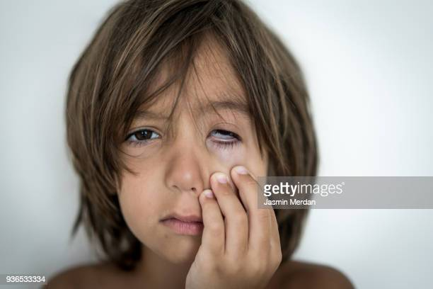 little kid suffering from eye pain - conjunctivitis stock pictures, royalty-free photos & images