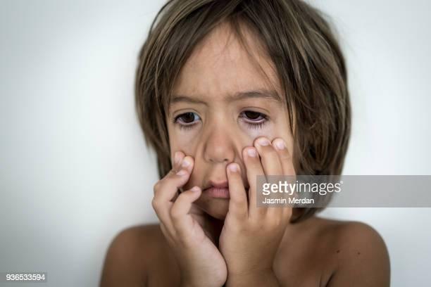 Little Kid Suffering from Eye Pain