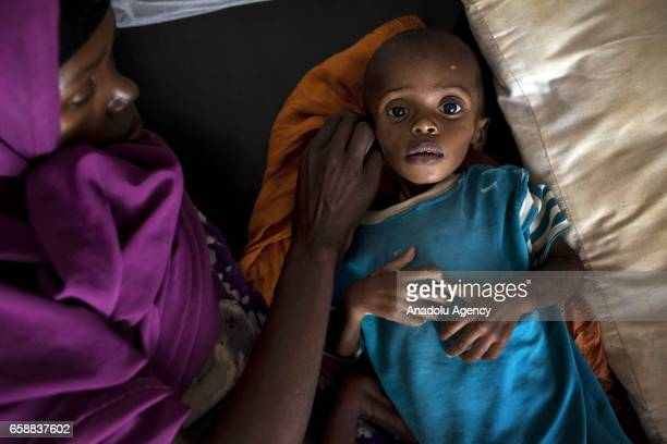Little kid waits for medical treatment at Bay Regional Hospital in Baidoa, capital of Bay State of Somalia on March 28, 2017. In the central and...