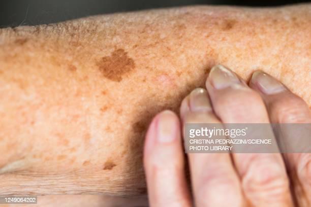 liver spots on elderly skin - lentigo fotografías e imágenes de stock