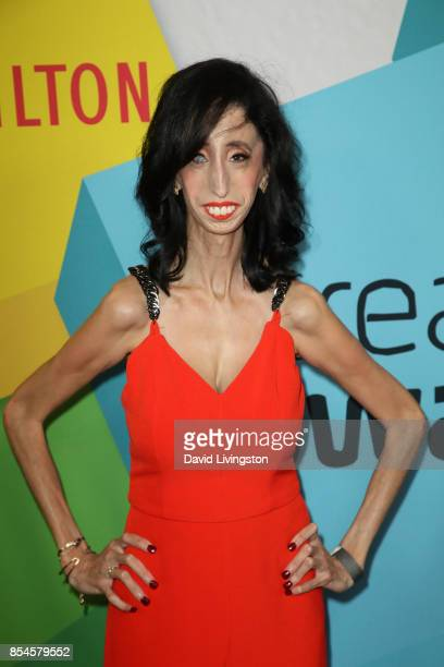 Lizzie Velasquez attends the 7th Annual 2017 Streamy Awards at The Beverly Hilton Hotel on September 26 2017 in Beverly Hills California
