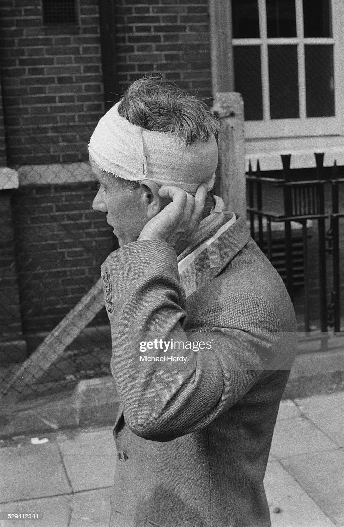 Local resident Herbert Harper with his head in bandages after the Notting Hill race riots, London, 1st September 1958.