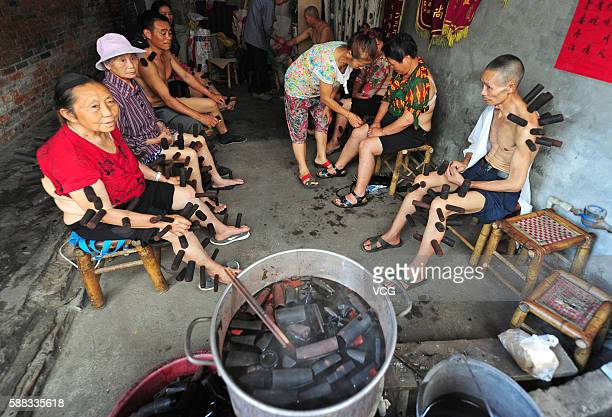 Local residents receive bamboo cupping therapy at the clinic in Heshan Town on August 10 2016 in Pujiang County Chengdu City Sichuan Province of...