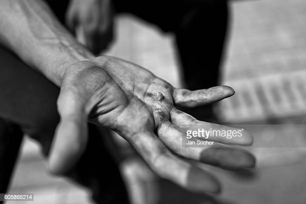 Logan Franco a parkour runner from Tamashikaze team shows the blisters on his hand during a free running training session on March 13 2016 in Bogota...
