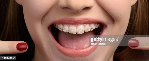 look at my braces - brace stock pictures, royalty-free photos & images