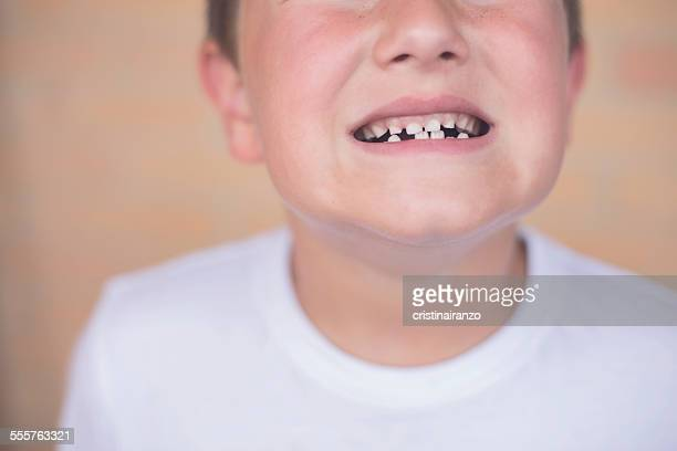 look at my teeth - streptococcus mutans ストックフォトと画像