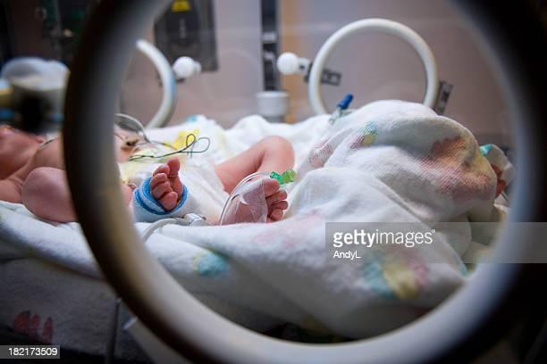 Um vorzeitiger Kleinkinder Fuß durch Isolette