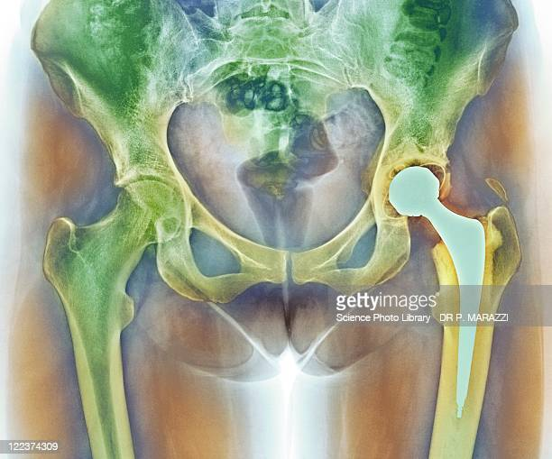 loosened hip replacement, x-ray - implant stock photos and pictures