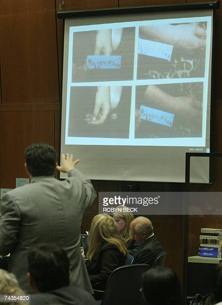 Defense attorney Christopher Plourd shows photographs of the hand of Lana Clarkson after her death during the murder trial of music producer Phil...