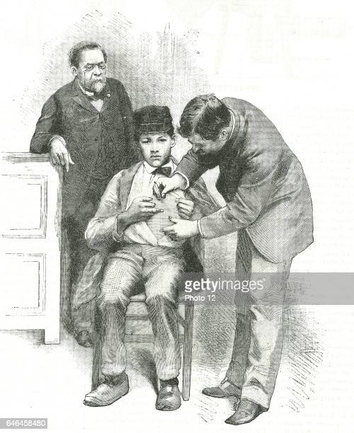 Louis Pasteur French chemist looking on as his assistant inoculates Joseph Meister a shepherd boy who had been bitten by a rabid dog Engraving from...