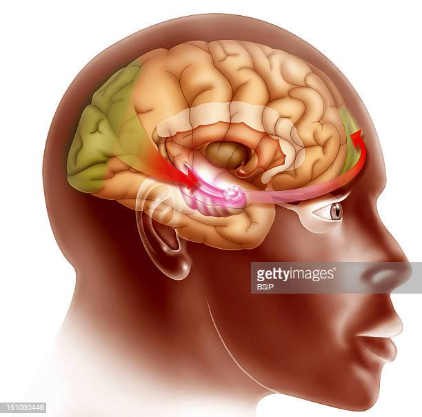 Love At First Sight Stage 2 See Image No 11895 05 For Stage 1 And No 11897 05 For Stage 3 Illustration Of What Occurs In The Brain When A Subject...