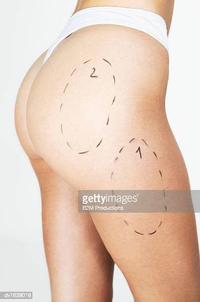 low section of a woman with markings on her thighs - liposuccion fotografías e imágenes de stock
