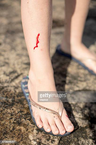 low section of girl with wounded leg standing on rock - bloody leg stock photos and pictures