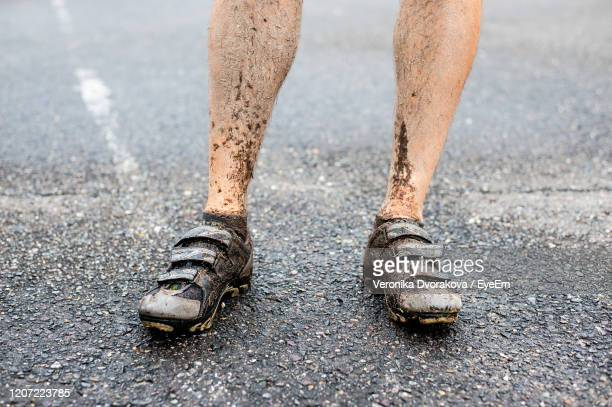 low section of man with messy legs standing on road - imperfection stock pictures, royalty-free photos & images