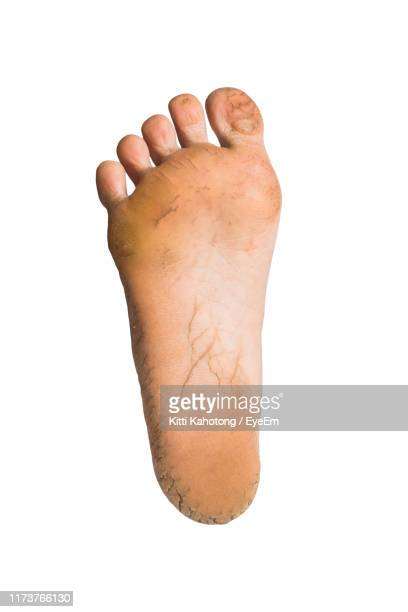low section of person against white background - human foot stock pictures, royalty-free photos & images