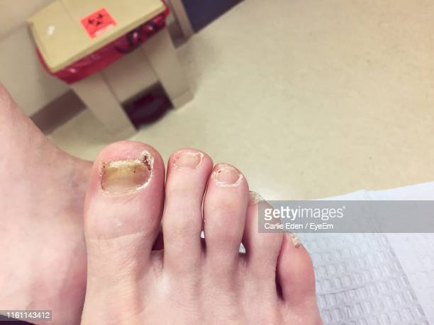 low section of person with fungal disease on toenail - infectious disease stock pictures, royalty-free photos & images