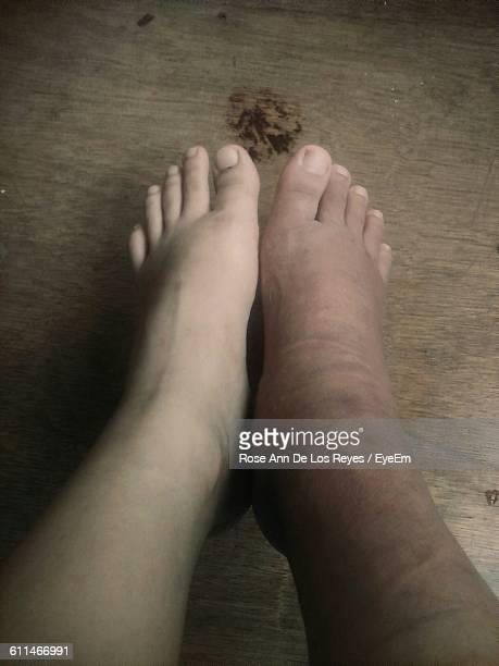 low section of person with malleolar fracture - swollen stock photos and pictures