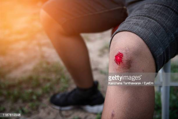 low section of person with wound sitting on land - sangre humana fotografías e imágenes de stock