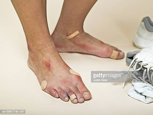 low section of woman with bandages on feet - blister stock pictures, royalty-free photos & images