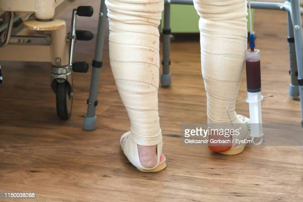 low section of woman with broken leg standing on hardwood floor in hospital - alleen één seniore vrouw stockfoto's en -beelden