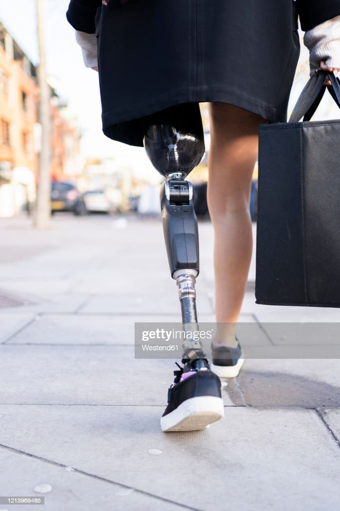 Low section of woman with leg prosthesis walking in the city : Stock Photo