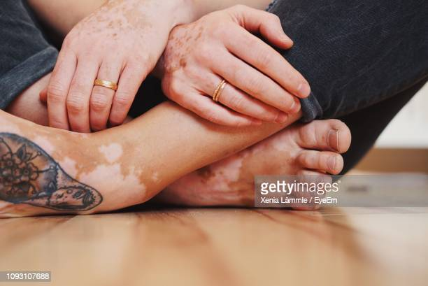 Low Section Of Woman With Vitiligo Sitting On Floor At Home