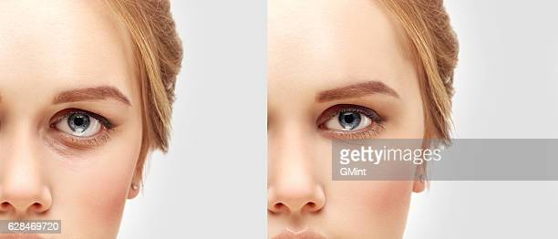 Lower blepharoplasty.Upper blepharoplasty