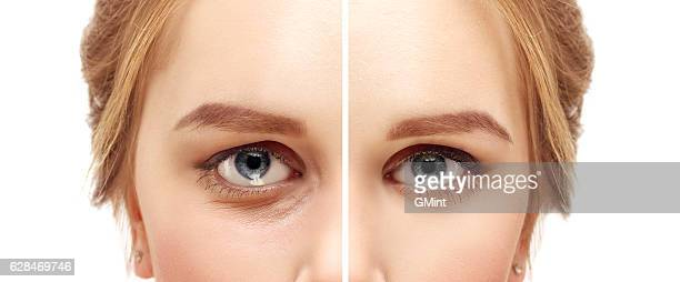 lower blepharoplasty.upper blepharoplasty - eternity stock pictures, royalty-free photos & images