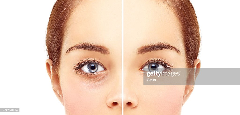 Lower-Eyelid Blepharoplasty : Stock Photo