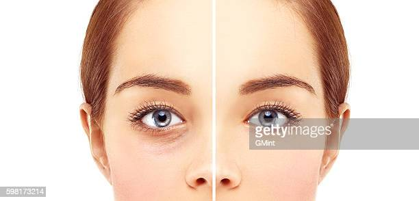 Lower-Eyelid Blepharoplasty