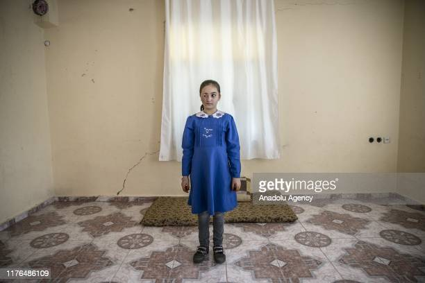 Luceyn Kifretune, 9 years-old Syrian girl whose face burnt and lost four of her family members after a barrel bomb attack of Assad Regime hit their...