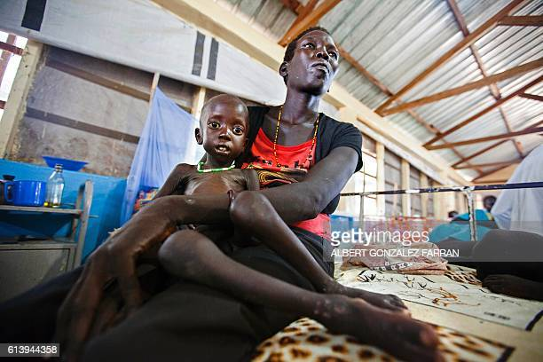 Lucia Adeng Wek holds her son Wek Wol Wek who suffers acute malnutrition at the clinic run by Doctors without Borders in Aweil Northern Bahr al...
