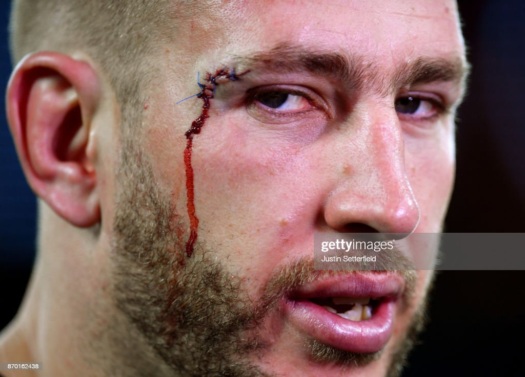 Barbarians v New Zealand - Killik Cup