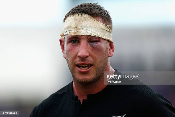 Luke Romanos of the All Blacks shows the scars of the match following the International Test match between Samoa and the New Zealand All Blacks at...