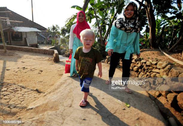 Lukman Hakim 4 years one of Albino's offspring with mother and family come home in Ciburuy village Garut West Java on July 262018There are nine...