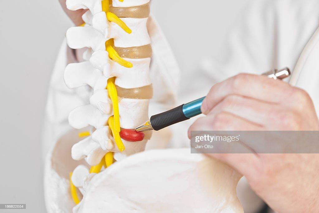 Lumbar disc herniation : Stock Photo