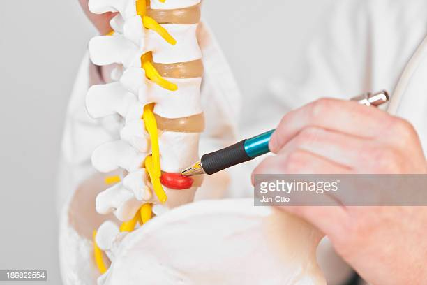 lumbar disc herniation - liesbreuk stockfoto's en -beelden
