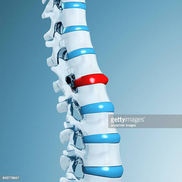 lumbar spine with spinal disk - condition stock pictures, royalty-free photos & images