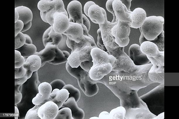 Lung Alveolus Sem Hemoglobin In The Red Blood Cells Carbon Dioxide Is Released From The Bloodstream Into The Alveoli And Expelled With The Expired...
