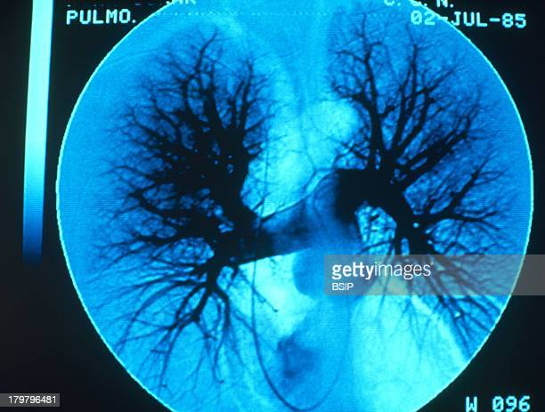 Lung Angiography For Emphysema