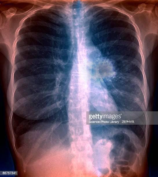 lung cancer, close-up - raucher lunge stock-fotos und bilder
