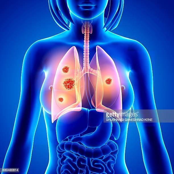 lung cancer, computer artwork. - cancro ai polmoni foto e immagini stock