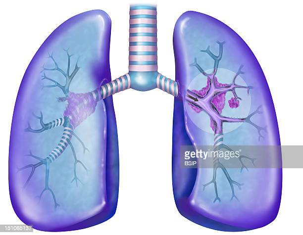 Lung Cancer Of A Smoker With The Presence Of Tar Depots In The Bronchi This Image Is A Part Of A Series On Pulmonary Pathologies
