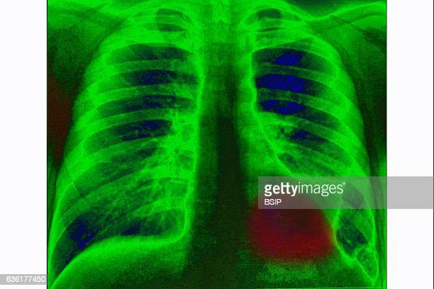 Lung cancer on the left pulmonary lobe seen on a frontal xray of the chest