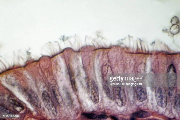 lung cilia and mucus - cilium stock pictures, royalty-free photos & images