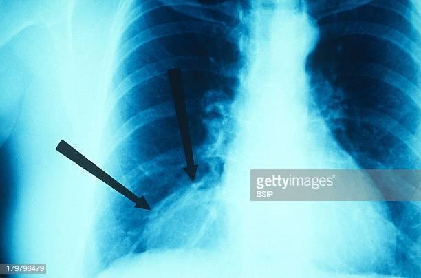 Lung Cyst XRay PleuroPulmonary Cyst