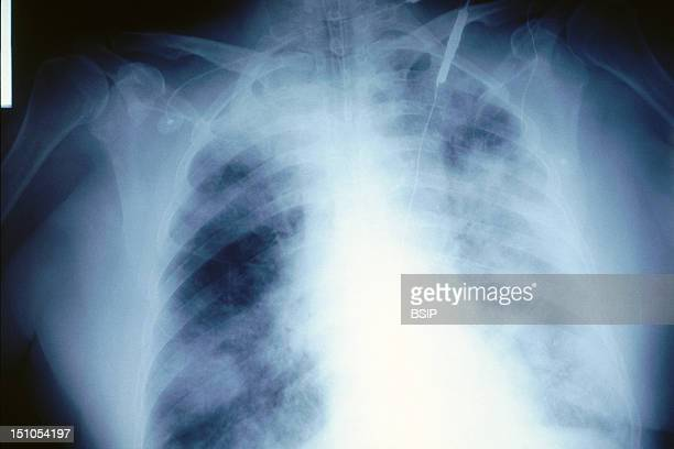 Lung X Ray
