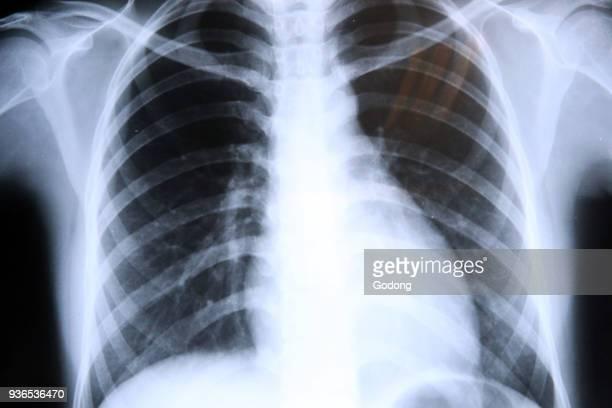 Lungs Radiography Xrays Ho Chi Minh City Vietnam