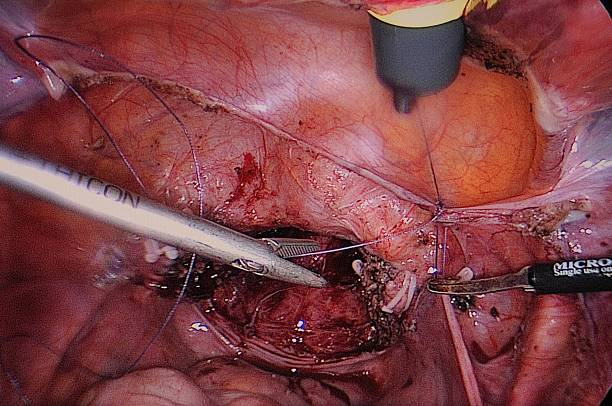Hystero-Ovariectomy Pictures  Getty Images-3627