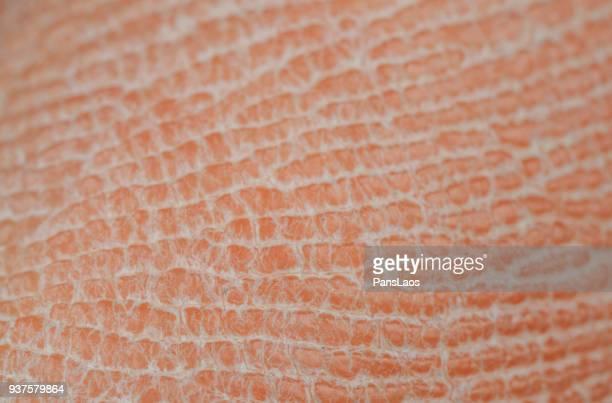 macro of dry human skin